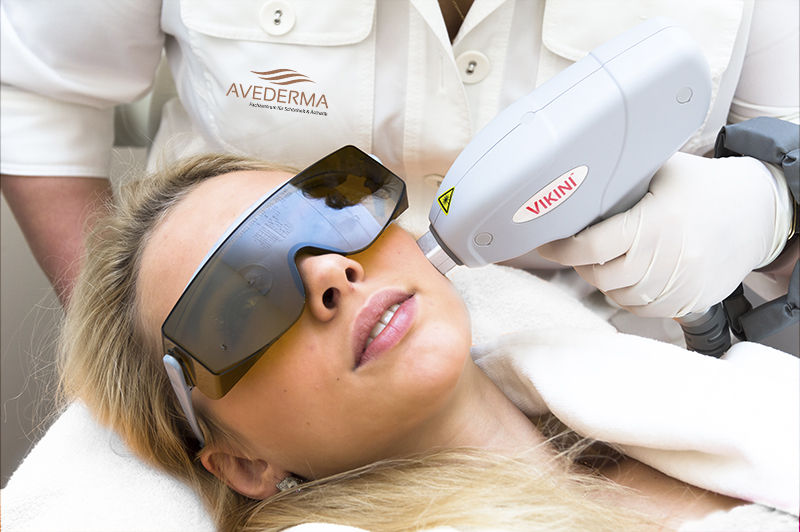 Haarentfernung, Laser Haarentfernung