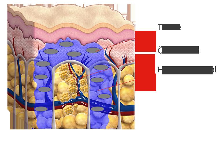 Hyaluronan Pool, Odemdruck, Toxine, Lymphgefäße blockiert . Cellulite Behandlung Avederma Berlin