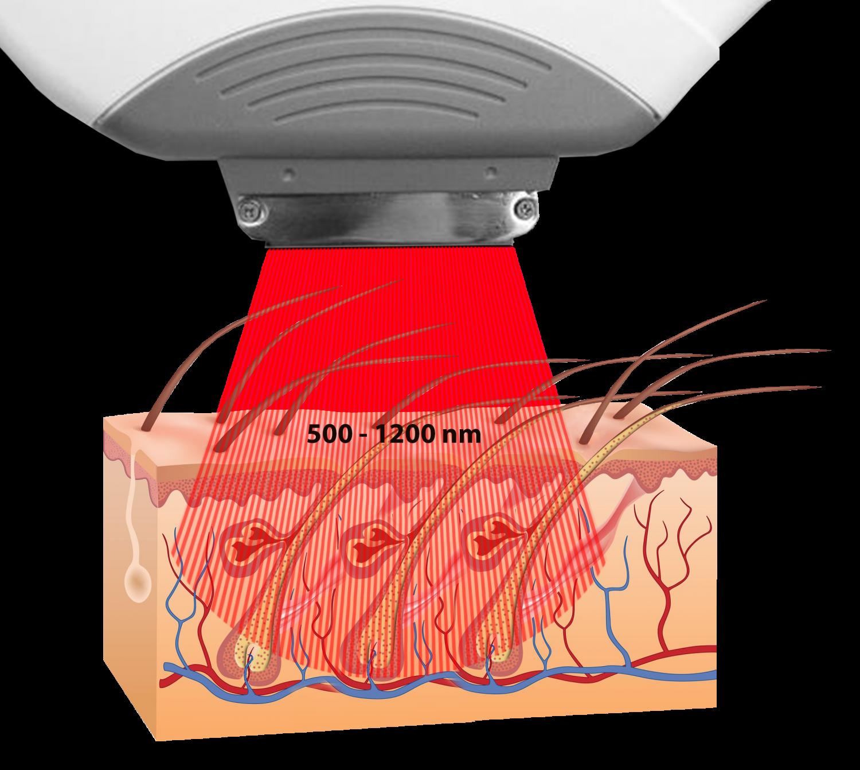 IPL Haarentfernung, 500-1200 nm, Laser haarentfernung Avederma Berlin