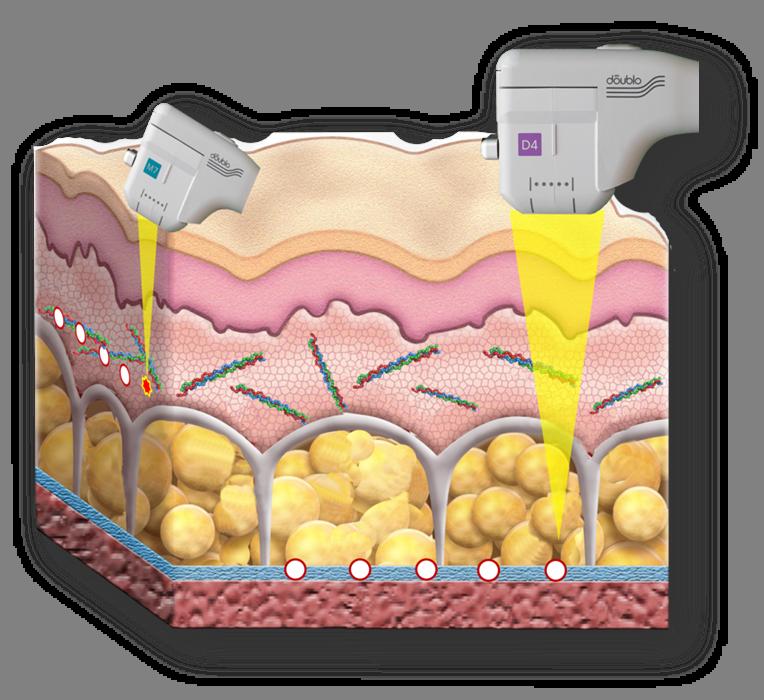 avederma-faltenbehandlung-doublo-ultraschall-lifting-wie-ultherapie