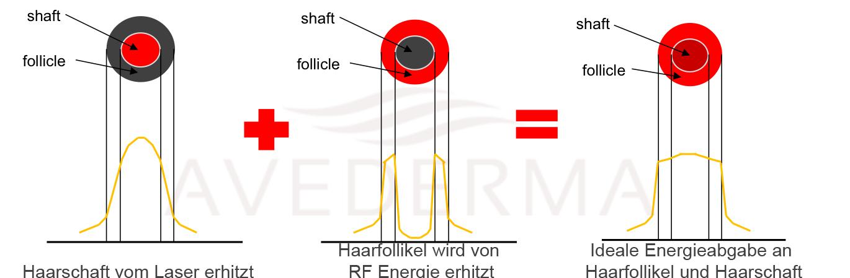 avederma-haarntfernung-schema-laser-epilia-rf