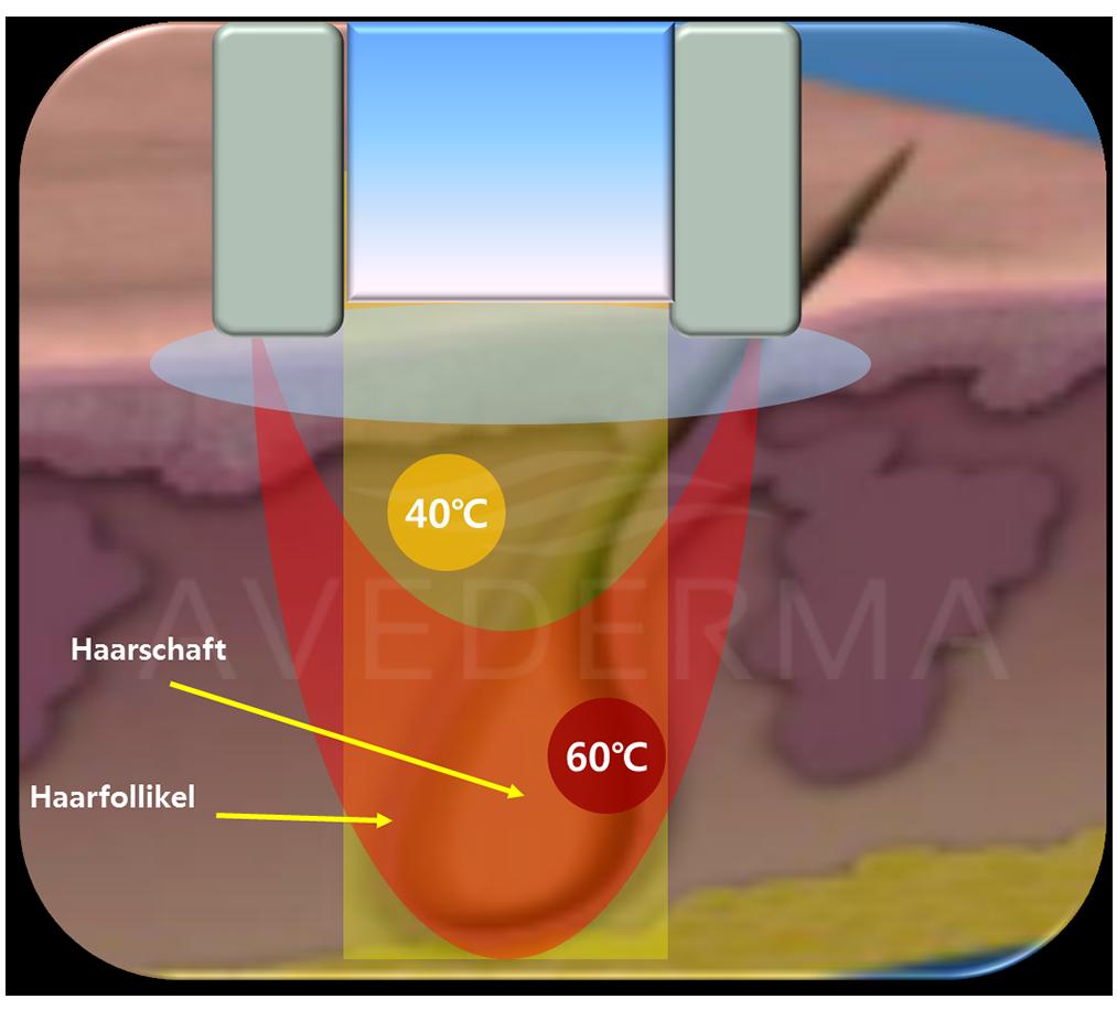 avederma-hautkühlung-dauerhafte-haarentfernung