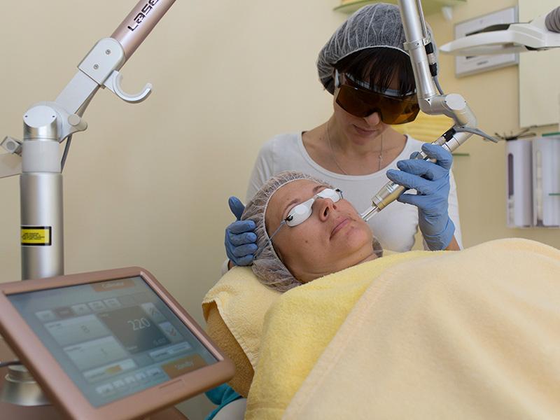 pigmentflecken entfernen berlin - pigmentflecken behandlung mit ND YAG Laser