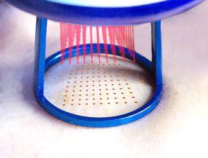 Dehnungsstreifen wegbekommen - laserbehandlung