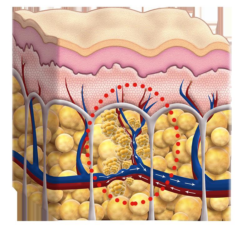 Ödemdruck auf die Fettzellen. Cellulite Behandlung Berlin Avederma