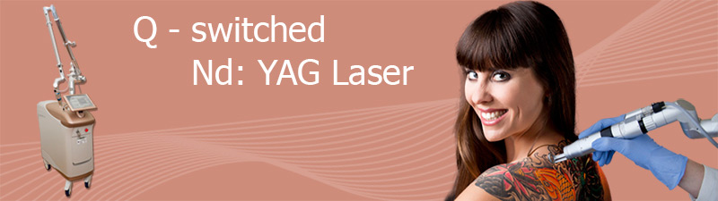 Tattoentfernung Berlin, Lasertechnologie bei Avederma