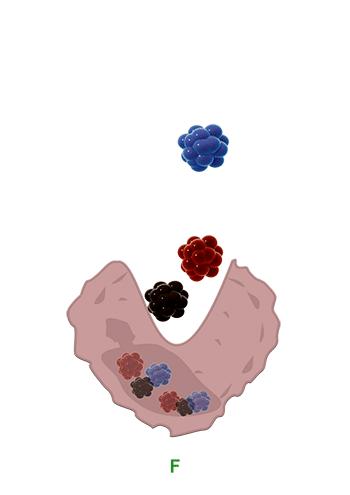 tatmacrophag-3-phagozytose-der-tattoo-farbe-tooentfernung-in-berlin-avederma