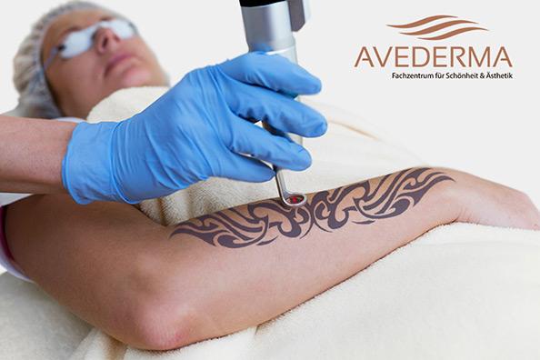 tattooentfenung-berlin-bei-avederma